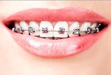 Brackets Mini + Retenedores 94% - Cuponatic
