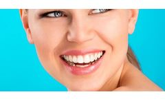 Blanqueamiento dental Clinica Odont We Smile - woOw
