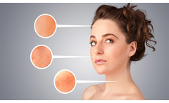 Terapia Anti acne - TuDescuentón