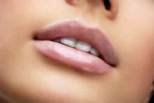 Juvederm Ultra Smile Lip Plump 69 instead of 250 for a 0 4ml Juvederm lip plump treatment or 99 for 0 8ml at Arcadia Care Birmingham save up to 72 - wowcher